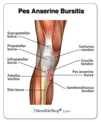 Pes Anserine Bursitis | Riverdale Sports Physical Therapy