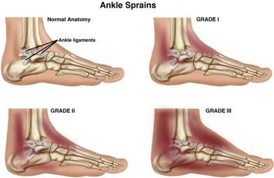 Physical Therapy for Ankle Sprains