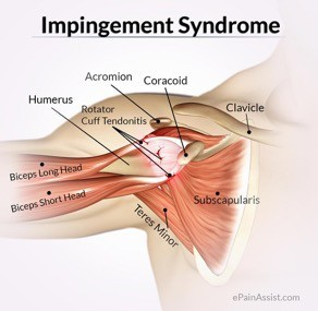 Physical Therapy for shoulder Impingement Syndrome