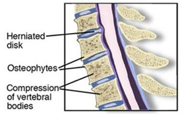 Physical Therapy for Degenerative Disk Disease