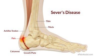 Physical Therapy for Severd Disease