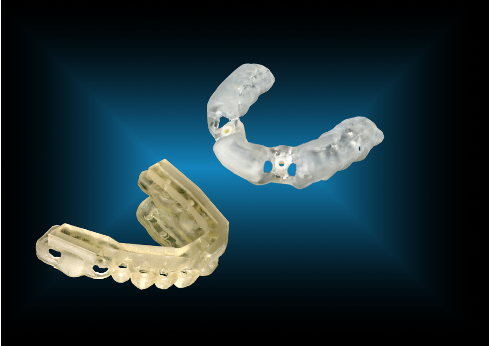 Partial Edentulous Guide
