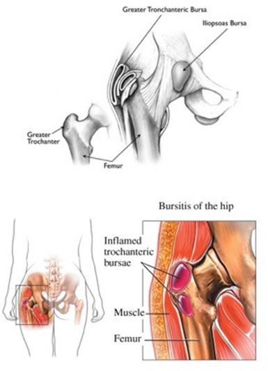 Hip Bursitis Treatment Riverdale Sports Physical Therapy