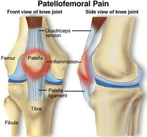 Physical Therapy for Runners Knee