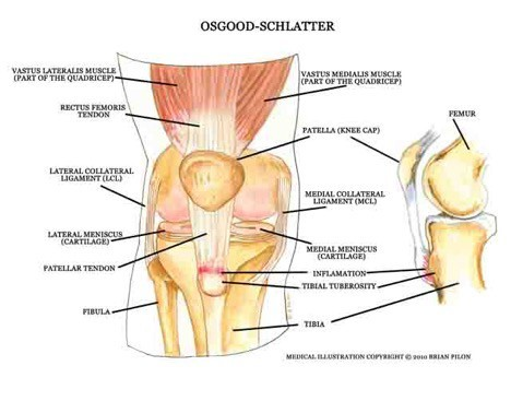 Physical Therapy for Osgood Schlatters Disease