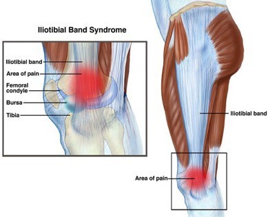 Physical Therapy for Iliotibal Band Syndrome