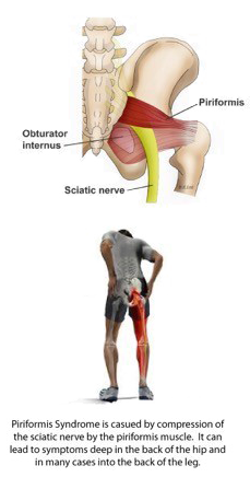 Physical Therapy for Piriformis Syndrome
