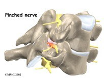 Physical Therapy for Pinched Nerve