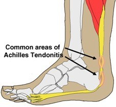 Physical Therapy for Achilles tendonitis