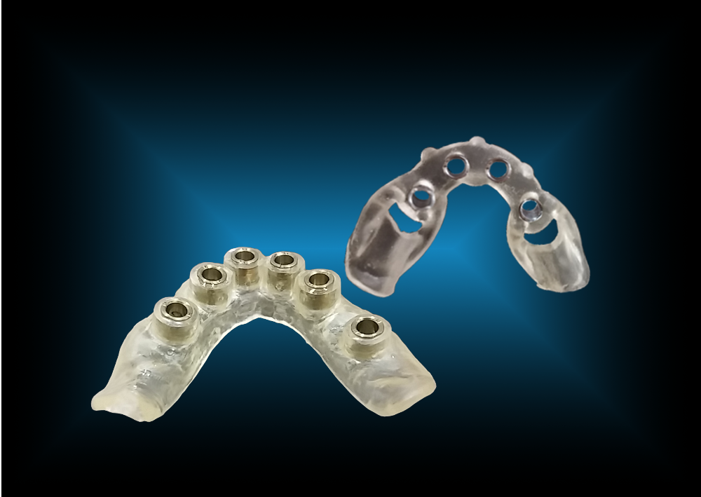 Single-piece Edentulous Guide